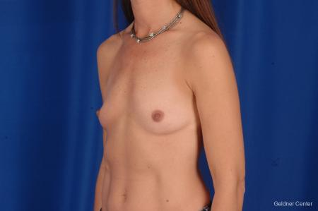 Chicago Breast Augmentation 2294 - Before and After Image 5