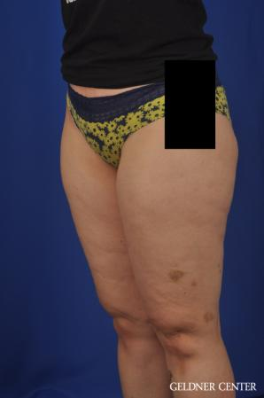 Liposuction: Patient 44 - Before and After Image 5