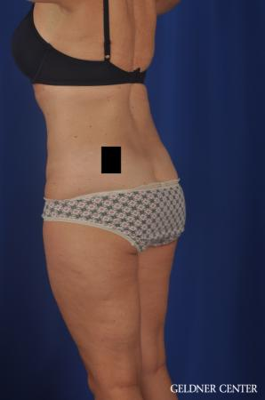 Tummy Tuck: Patient 22 - After Image 5