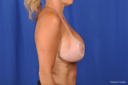 Complex Breast Augmentation Streeterville, Chicago 2392 -  After Image 2