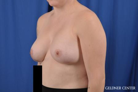 Breast Augmentation: Patient 178 - After Image 4