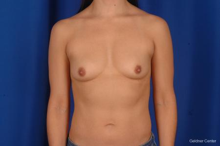 Breast Augmentation Hinsdale, Chicago 2299 - Before Image 1