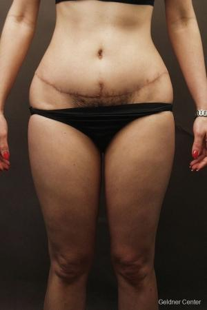 Liposuction: Patient 7 - Before Image