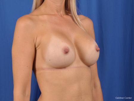 Breast Augmentation: Patient 148 - After Image 2