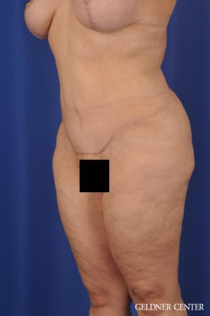 Liposuction: Patient 23 - After Image 4