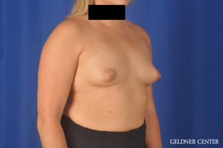 Breast Augmentation: Patient 179 - Before Image 2