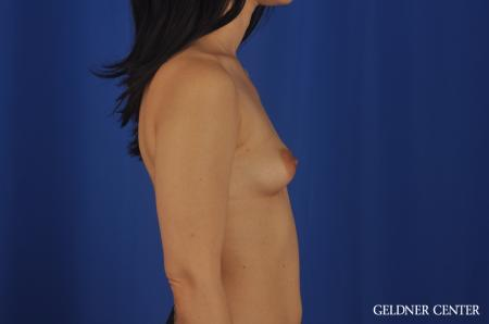 Chicago Breast Lift 5473 - Before Image 3