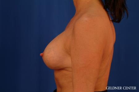 Chicago Breast Lift 2617 -  After Image 4