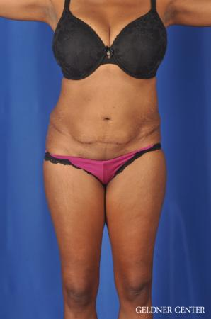 Abdominoplasty: Patient 6 - Before Image 1