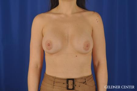 Chicago Breast Augmentation 8760 -  After Image 1