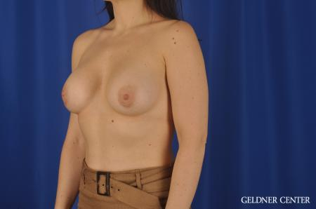 Chicago Breast Augmentation 8760 -  After Image 4