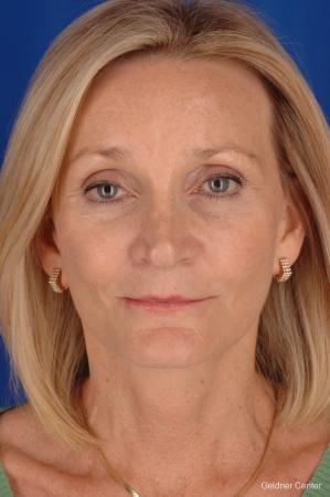 Facelift: Patient 3 - After Image