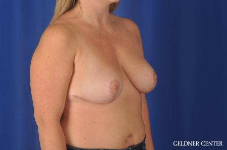 Chicago Breast Reduction 11855 -  After Image 2
