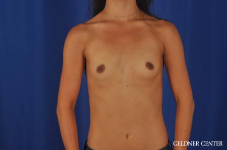 Breast Augmentation Lake Shore Dr, Chicago 5545 - Before Image 1