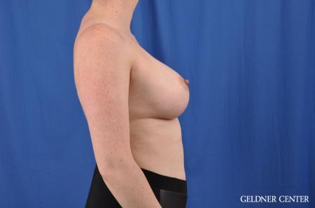 Breast Augmentation: Patient 135 - After Image 2