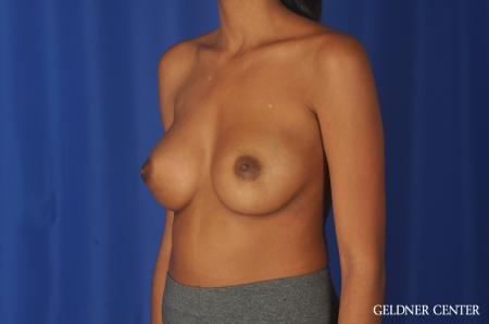 Chicago Breast Augmentation 11869 -  After Image 4