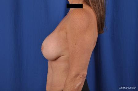 Breast Lift: Patient 43 - Before Image 4