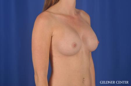 Breast Augmentation Lake Shore Dr, Chicago 6658 -  After Image 2