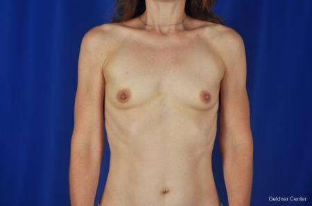 Chicago Breast Augmentation Natrelle Smooth Gel Implants 2067 - Before Image 1