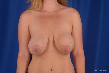 Complex Breast Augmentation Lake Shore Dr, Chicago 2290 - Before Image