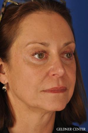 Facelift & Neck Lift: Patient 1 - Before Image 3