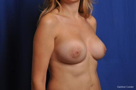 Chicago Breast Augmentation 2053 -  After Image 3
