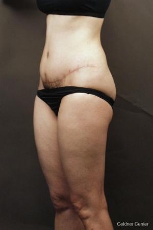Liposuction: Patient 8 - Before Image 3