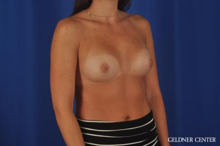 Breast Augmentation Hinsdale, 4290 -  After Image 2