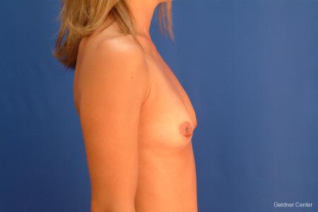 Breast Augmentation Hinsdale, Chicago 2510 - Before Image 2