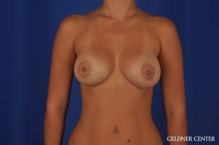 Breast Augmentation: Patient 109 - After Image 1