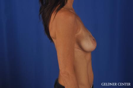 Breast Augmentation Streeterville, Chicago 5470 - Before Image 3