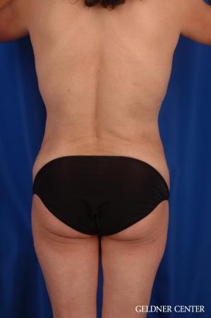Vaser lipo patient 2629 before and after photos -  After Image 4