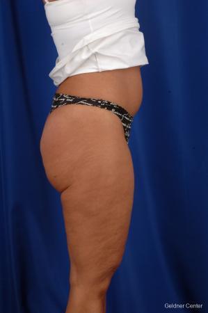 Liposuction: Patient 7 - After Image 3
