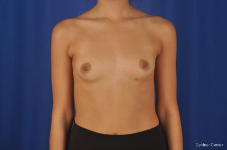 Breast Augmentation Streeterville, Chicago 8616 - Before 1