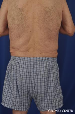 Abdominoplasty For Men: Patient 3 - After Image 4