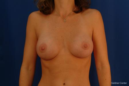 Chicago Breast Augmentation 2442 -  After Image 1