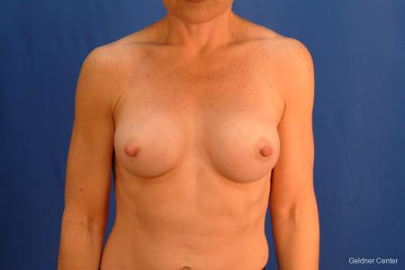 Chicago Breast Augmentation 2635 -  After 1