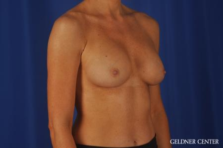 Chicago Breast Augmentation 8745 -  After Image 3