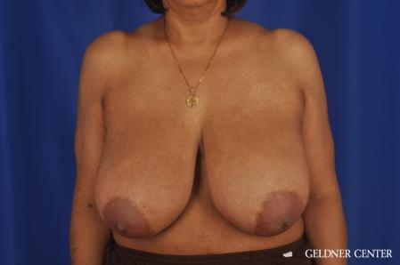 Breast Reduction: Patient 35 - Before Image 1