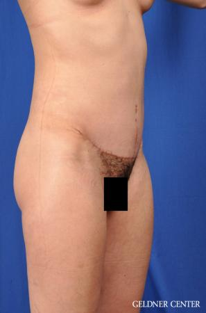 Tummy Tuck: Patient 32 - After Image 2