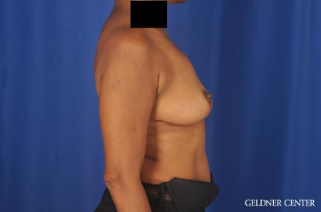 Breast Lift: Patient 22 - After Image 2