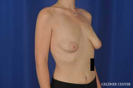Breast Augmentation Streeterville, Chicago 5547 - Before 2