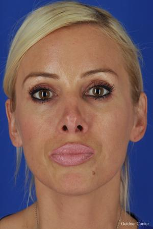Chicago Rhinoplasty - After Image