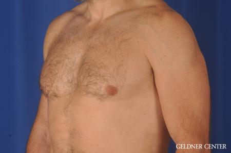 Gynecomastia: Patient 9 - After Image 4