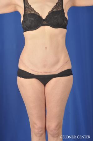 Liposuction: Patient 33 - After 1