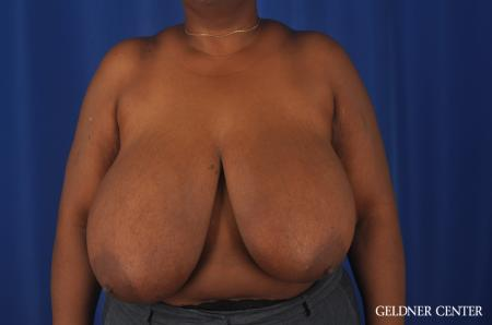 Chicago Breast Reduction 11871 - Before Image 1