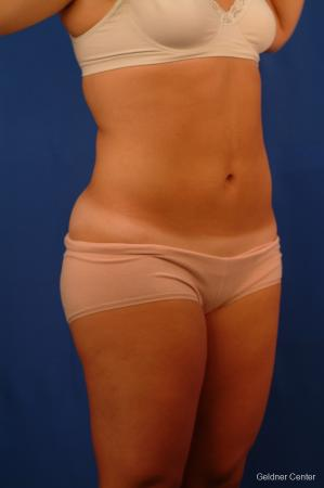 Liposuction: Patient 12 - After Image 2