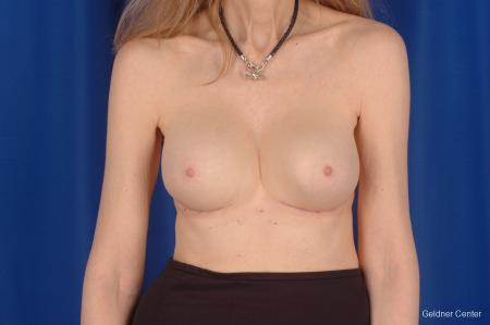 Complex Breast Augmentation Hinsdale, Chicago 2398 -  After Image 1
