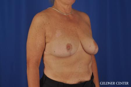 Breast Reduction Lake Shore Dr, Chicago 3223 -  After Image 3