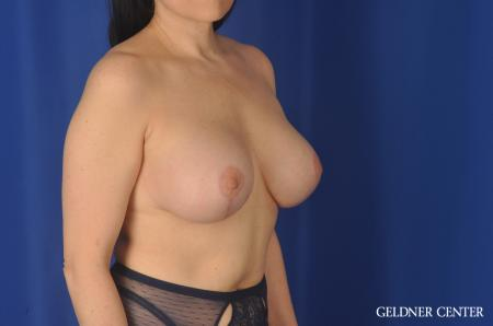 Chicago Breast Lift 11857 -  After Image 3